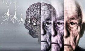 Распространенную деменцию предложили лечить антибиотиком