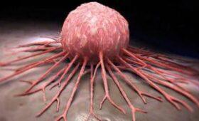Появилась надежда на вакцину от рака