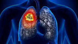Исследование: одышка и кашель являются первым симптомом рака легких