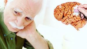 Изменения в мозге при болезни Альцгеймера начинаются до 40 лет