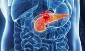 Рак поджелудочной железы. 4 признака болезни, которые скрываются в стуле
