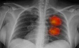 Молодые женщины стали чаще болеть раком легких