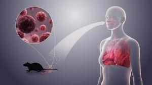 Хантавирус: чем грозит миру новое заболевание